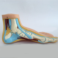Normal Foot Flat Feet Bow Foot Foot Combined Anatomical Model 3pcs Set