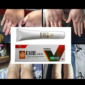 Image 3 - 30g Chinese Medical White Spot Disease Cream Pigment  Vitiligo Leukoplakia Disease Treatment Melanin Promoting Liniment Skin