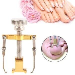 Image 3 - Ingrown Toe Nail Fixer Pedicure Recover Embed Toenail Correction Lifter Tool Set
