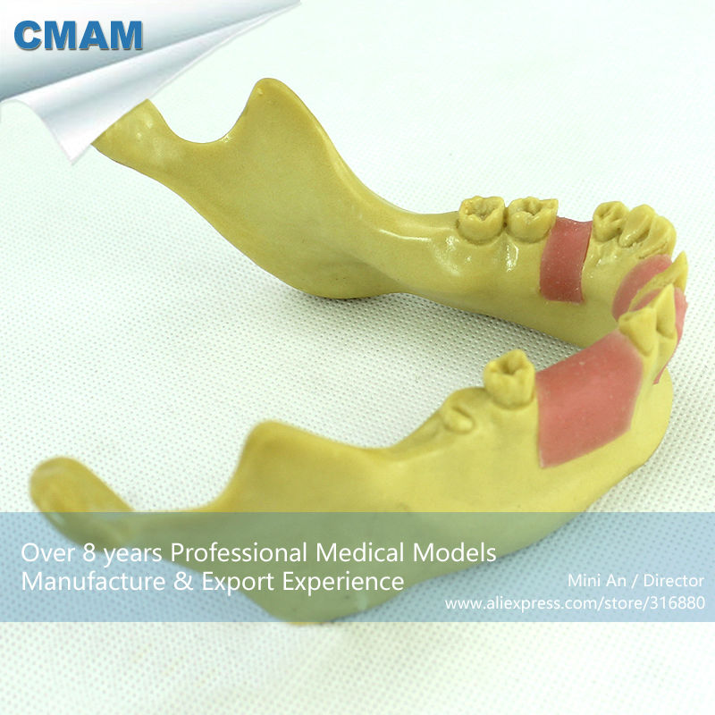 12619 CMAM-IMPLANT08 Dental Implant Missing Teeth Training Model, Lower Jaw Model guangzhou feie deaf rechargeable hearing aids mini behind the ear hearing aid s 109s free shipping
