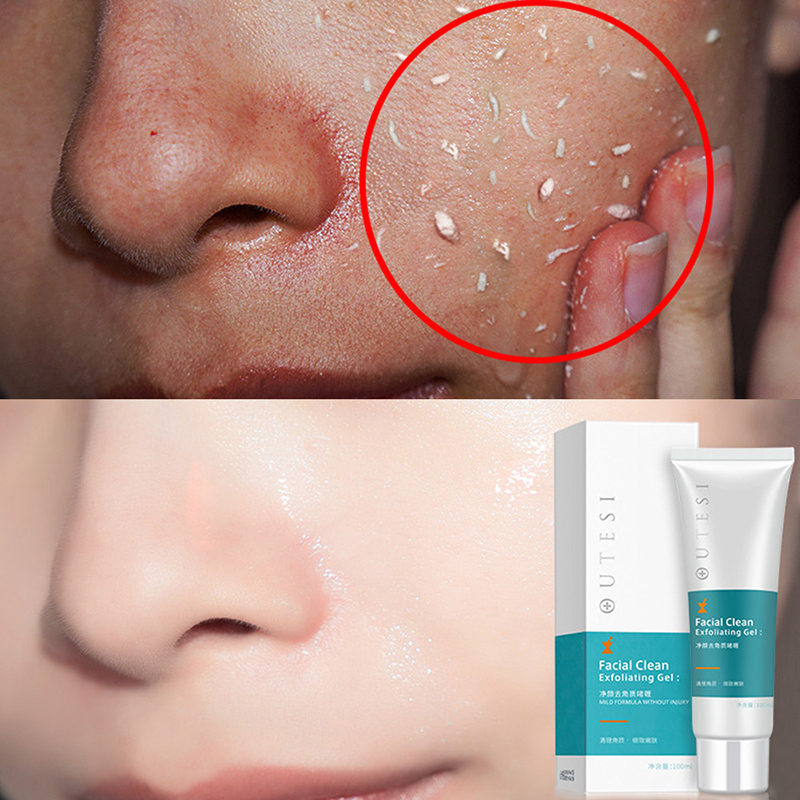 100ML Deep Cleansing Exfoliating Peeling Gel Moisturizes Face Exfoliating Cream Soft Organic Facial Cream Facial Scrub Cleaner