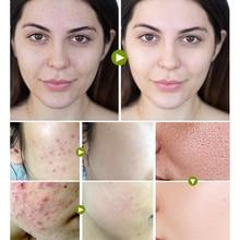 Tea Tree Anti-acne Cream