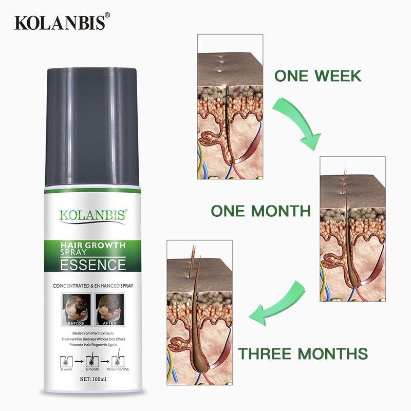 3 botellas de ginseng estimulan el crecimiento suero spray para la caída del pelo folículo cuero cabelludo tratamiento hombre crecimiento espesante producto recrecimiento - 2