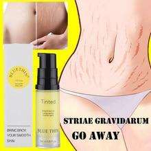 Крем для тела для восстановления кожи, для Удаления растяжек и шрамов, уход за шрамами, после родов, сыворотка для беременных, гладкие кремы для кожи TSLM2
