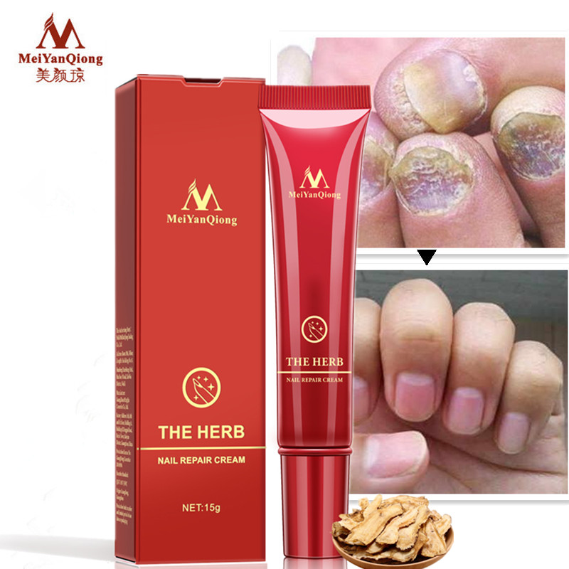 DropShipping MeiyanQiong Nail Care Herbal Nail Repair Cream Anti Fungal Nail Chinese Herbal Toe Nail Fungus Treatment herbal muscle
