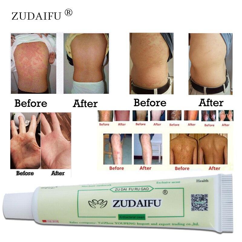ZUDAIFU Skin Care Product Relieve Psoriasis Dermatitis Eczema Pruritus Effect Without Retail Box