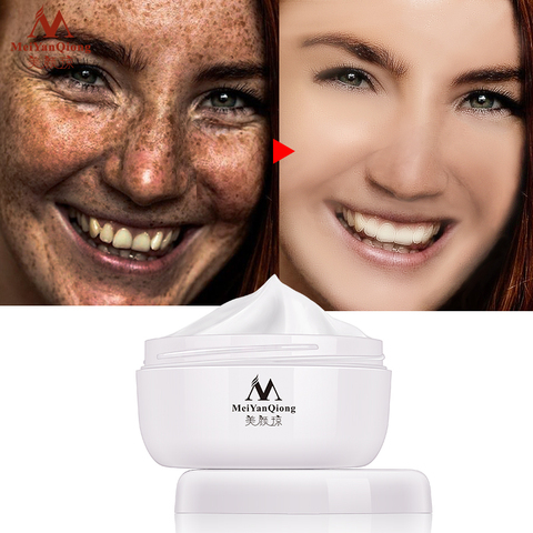 Powerful Whitening Freckle Cream 40g Remove Melasma Acne Spots Pigment Melanin Dark Spots Face Lift Firming Face Care Cream skin Lahore