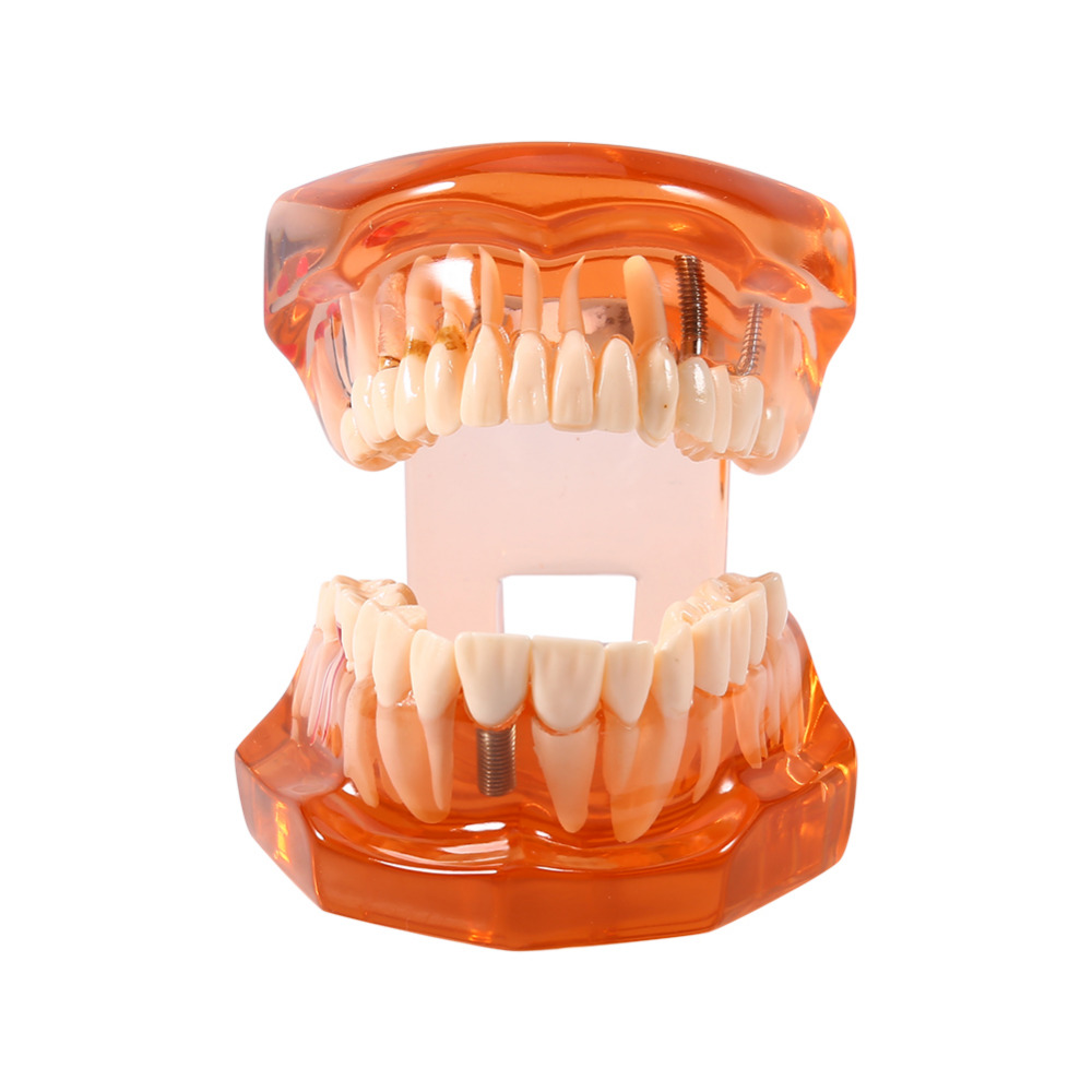 Dental Disease Removable Study Teaching Teeth Model Stand Teeth Moldel Orange Color High Quality teeth model dental periodontal disease practice dental model with removable gum can