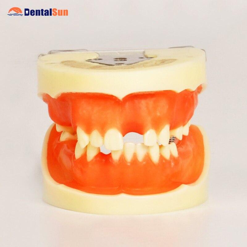 Modèle dentaire de pratique d'implant dentaire M2002 pour les étudiants dentaires avec la gomme molle peuvent pratiquer l'incision et la suture
