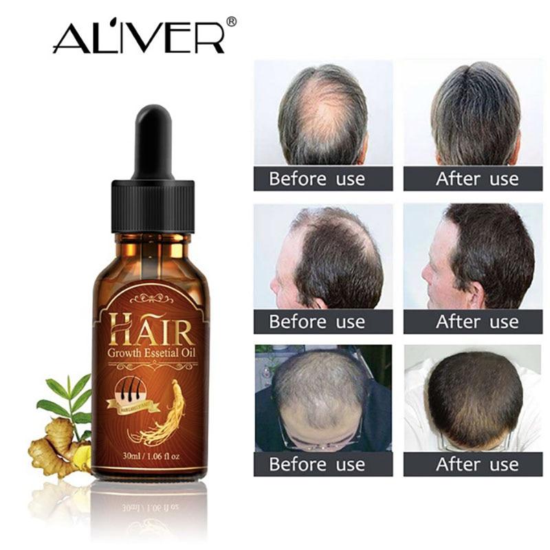 Hair Growth Essential Oil Essence Natural Hair Loss Liquid Hair Care Beauty Trea