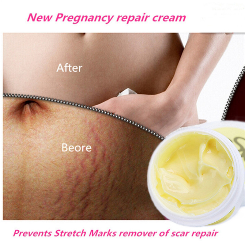 1Pc Precious Body Skin Cream Professional Stretch Mark Scar Removal Powerful Postpartum  ...