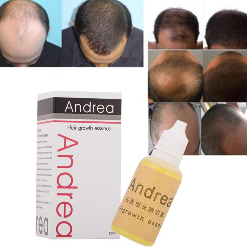 20ml Andrea Hair Growth Oil Essence Thickener for Hair Growth Serum Hair Loss Product 100% Natural Plant Extract Liquid Oil 5