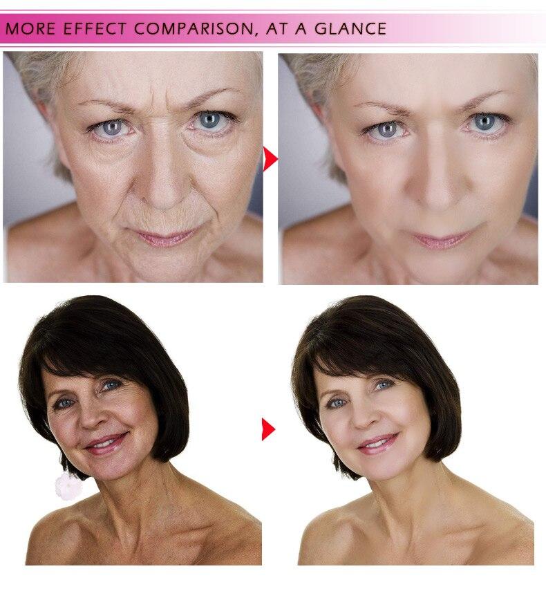 Hyaluronic Acid Serum + VC Snail Serum Collagen Serum Anti-Aging For men and women Moisturizing Skin Care Whitening Brighten 14