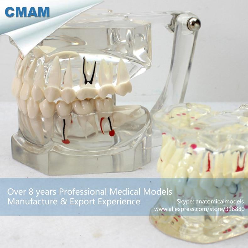 CMAM-DENTAL14 Transparent 2x Life Size Disease Dental Study Model,  Medical Science Educational Teaching Anatomical Models practical dental implant disease teeth model peridontal disease model medical science teaching