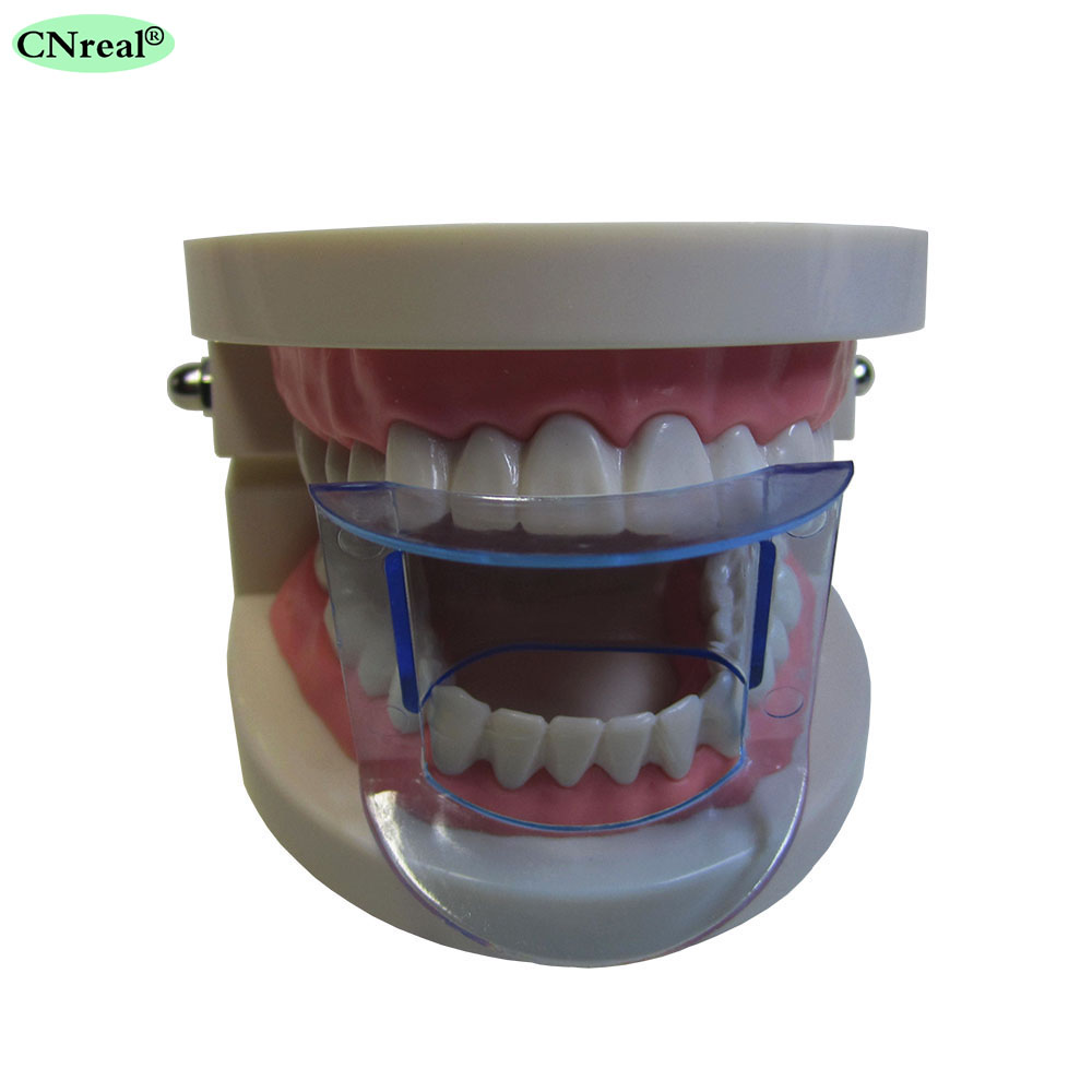 25 sztuk / partia Dental Lip Zwijacz Policzek Expander Usta Otwieracz - Hygiena jamy ustnej - Zdjęcie 2