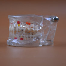 2pcs/lot Dental pathology model dentistry oral care teeth models Anatomy Teaching Models half size can be removable