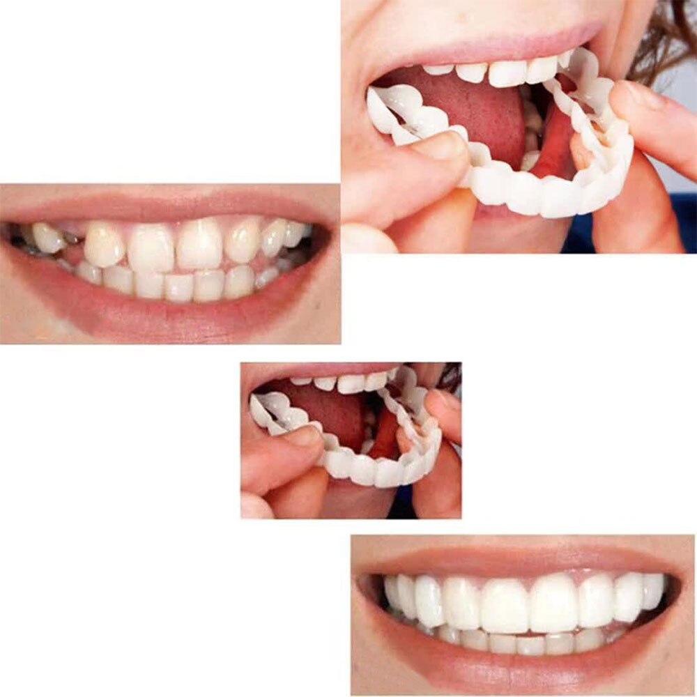 1Pcs Retain Smile Comfort Fit Flex Teeth Denture Teeth Top Cosmetic Perfect Smile Veneer Teeth Top Cosmetic Dental Veneer