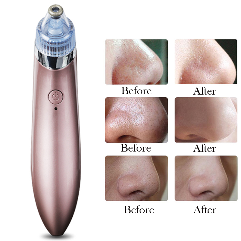 Beauty Suction and Electric