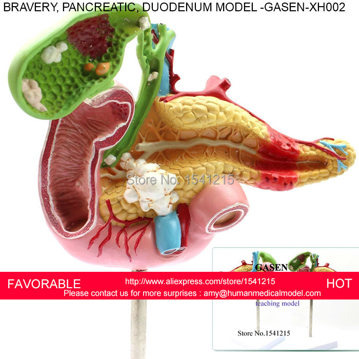 SURGERY MEDICAL PANCREATIC DIGESTIVE SURGERY GALLSTONES GALLBLADDER PATHOLOGY HEPATOBILIARY GASTROINTESTINAL MODEL GASEN-XH002 автомагнитола pioneer deh s100ubg
