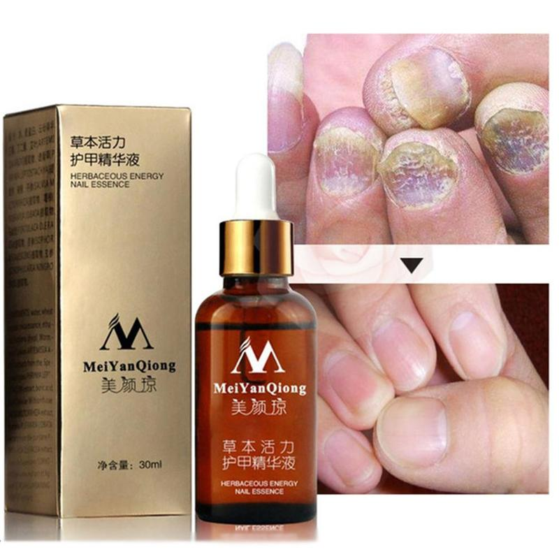 Meiyanqiong Herbal Nail Fungus Treatment Essential Oil Foot Protector Skin Nail Care Essential Oil Nail Repair Essential 30ml