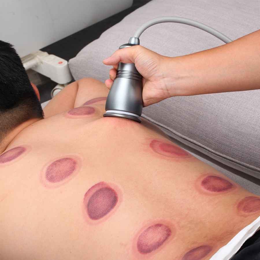 Electric Scraping Machine Body Cupping Massage Gua Sha Ventosas Anti Cellulite Fat Burner Vacuum Suction Pumps Therapy Apparatus