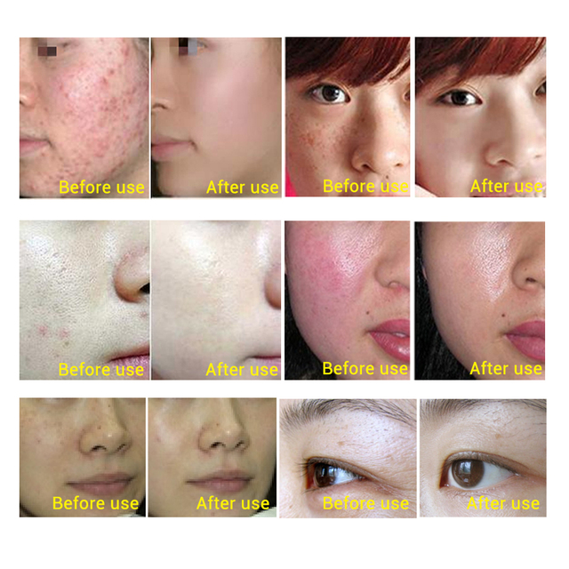 ROREC Hyaluronic Acid Face Serum Moisturizing Anti-Wrinkle Anti Aging  Collagen Shrink Pores Facail essence Whitening Skin Care 2