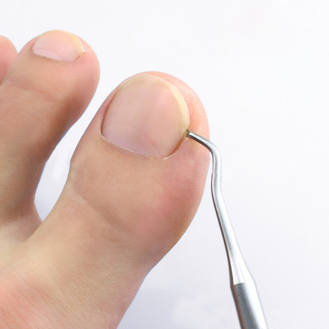 Ingrown Toe Nail Correction Lifter File Clean Installation Tool Pedicure Foot Care Hook Cleaner