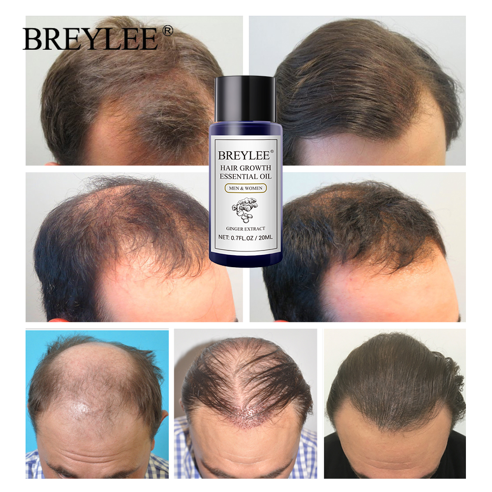 BREYLEE Hair Growth Essential Oil 20ml Fast Powerful Hair Products Hair Care Prevent Baldness Anti-Hair Loss Serum Nourishing Multan