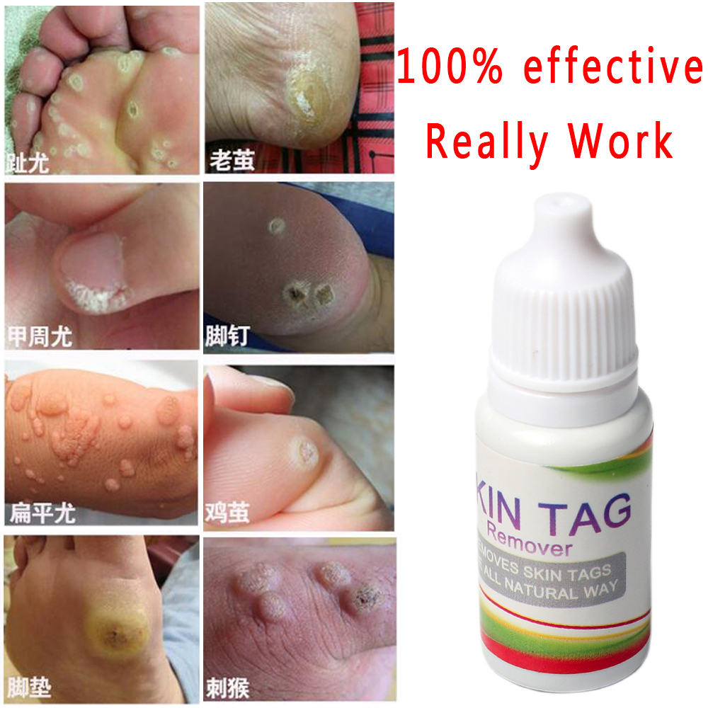Top 10 Skin Care Foot Removal Near Me And Get Free Shipping A729