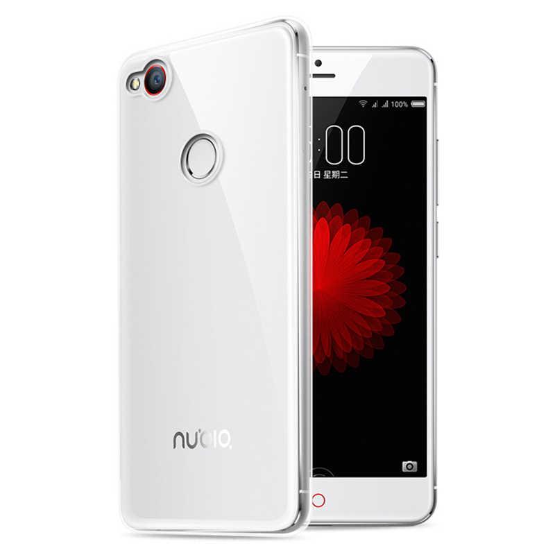 Clear Silicone Case voor ZTE Nubia Z17 Lite Soft Case voor ZTE Nubia M2 Telefoon Cover voor ZTE Z11 Mini s/M2 Lite TPU Case Capa