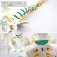 CMAM/12376 Spine, pelvis, clear blue intervertebral disc, femur head, Medical Spinnal Column Anatomical Human Model