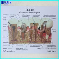 High Quality Dentistry Rich Details Teaching Aids Caries Tooth Model Dentist Patient Communication Anatomy Model Equipment