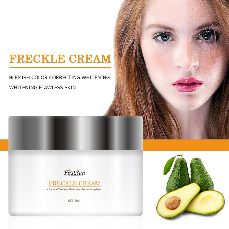 Efectos fuertes potente blanqueamiento crema de La Peca 30g eliminar Melasma manchas de acné pigmento melanina manchas oscuras crema de cuidado de la cara caliente ¡!