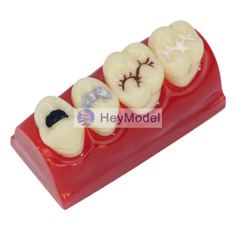 HeyModel Teeth Pit and fissure model Dental dentition model hot teeth development models teeth and jaw development model dental teeth models