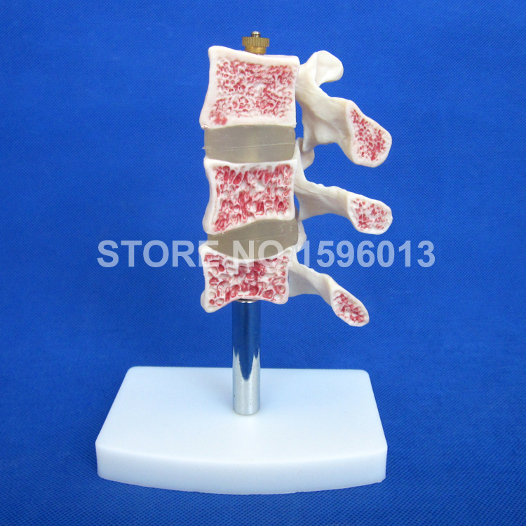 HOT Advanced Cutaway Osteoporosis Spine model, Lesions in the Lumbar Spine Model ...