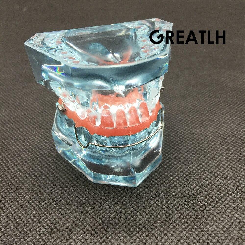 Bionateur orthopédique fonctionnel dentaire modèle amovible 3006 modèle dentaire d'étude dentaire