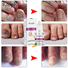 Ginger Antibacterial Nail Treatment Onychomycosis Paronychia Anti Fungal Infection Toe Fungus Essential Oil