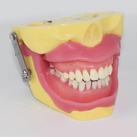 Modèle de pratique d'extraction des dents modèle de démonstration des dents d'anesthésie modèle dentaire outils d'enseignement dentaire outils de morphologie nouveau