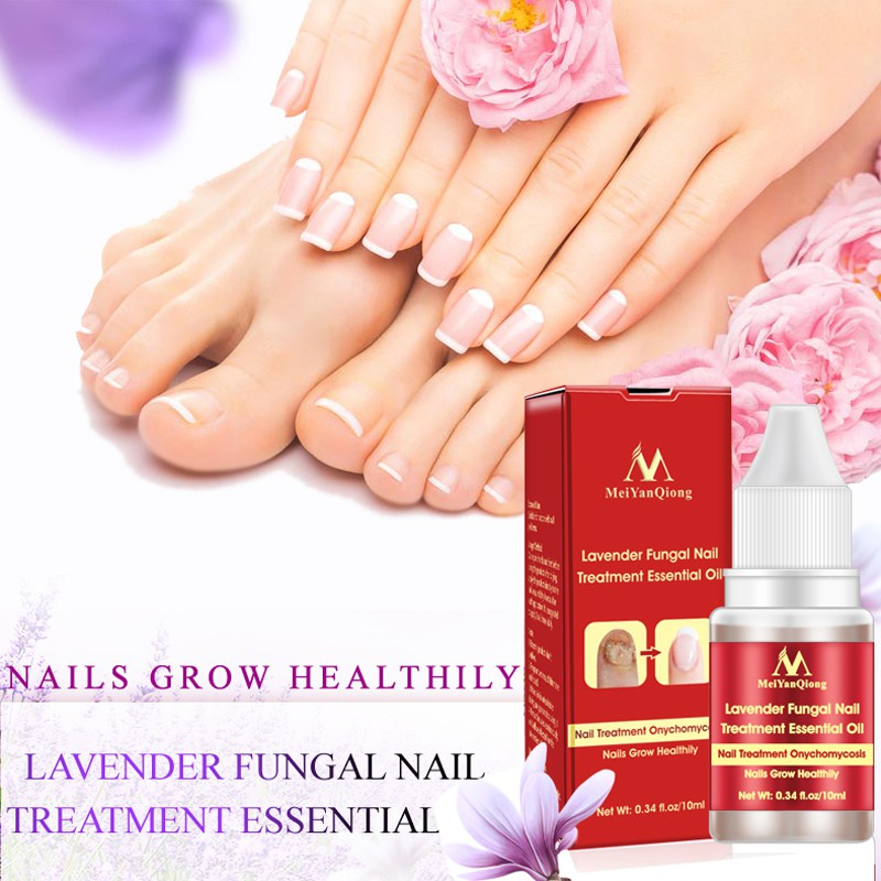 Fungal Nail Treatment Nail Fungus Removal Gel Anti Infection Paronychia Onychomycosis Feet Care Essence Nail Foot Whitening Toe
