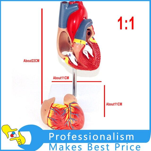 1 1 Heart Model B Ultrasound Color Ultrasound Cardiac Medicine