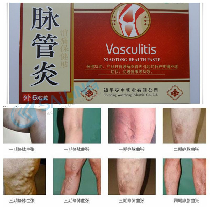 42pcs mai guan yan varicose veins treatment plaster patch for varicose vein cure plaster angiitis 100% china herbs varicose