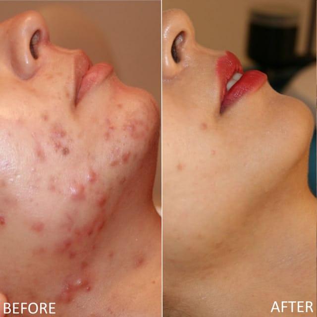 Retin-A Acne Anti Wrinkles Blemish Treatment 20g RETINOL VITAMIN A CREAM