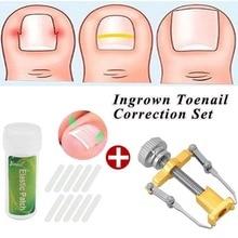 1 шт. инструмент для коррекции вросших пальцев ног из нержавеющей стали+ 10 шт. инструмент для коррекции ногтей