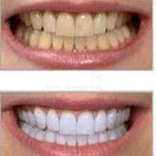 Крепкие высокопрочные стоматологические отбеливатель отбеливающий гелевая зубов продвижение отбеливание ручка большой