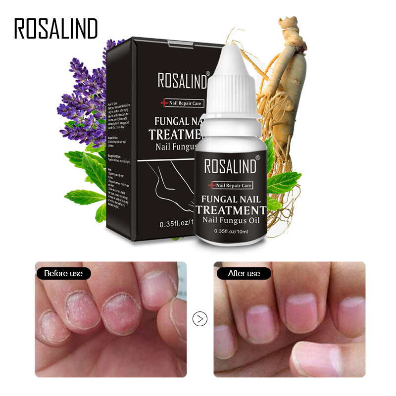 Detail Feedback Questions about ROSALIND Nails Fungus Treament Care ...