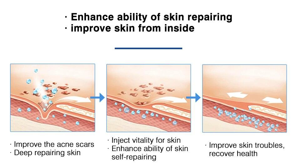 Omy senhora rejuvenescimento da pele soro acne