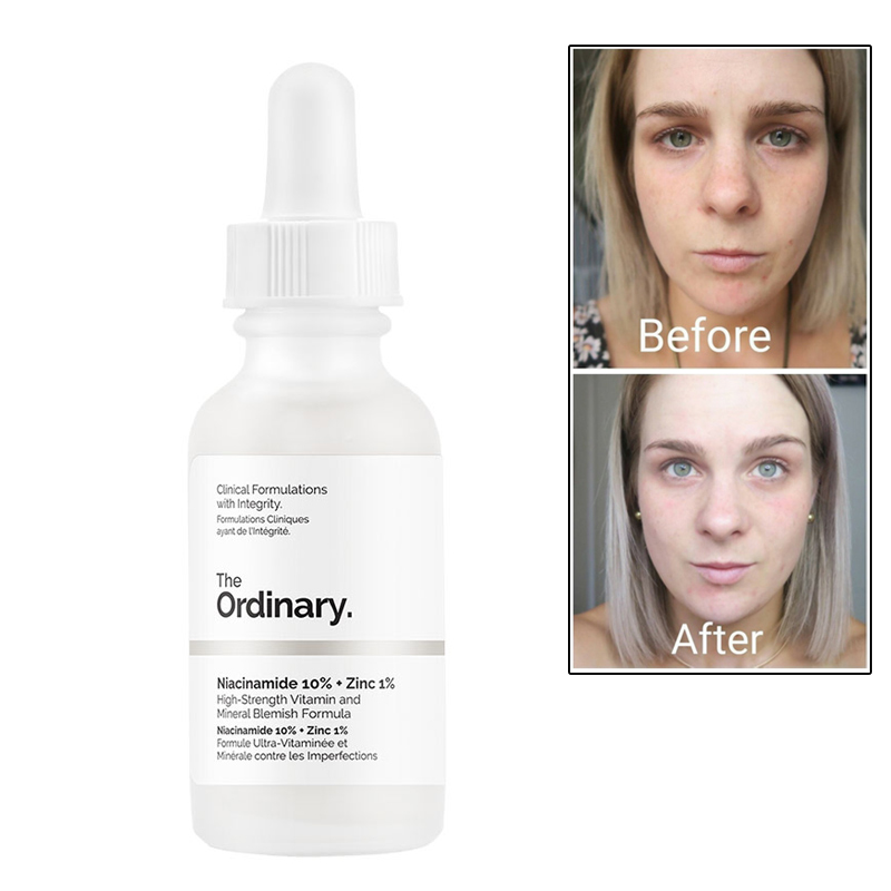 Ordinary Niacinamide 10% + Zinc 1% Face Serum Vitamin B3 Whitening Oil Balance Reduce Blemishes Brighten Skin Color Essence 30ML