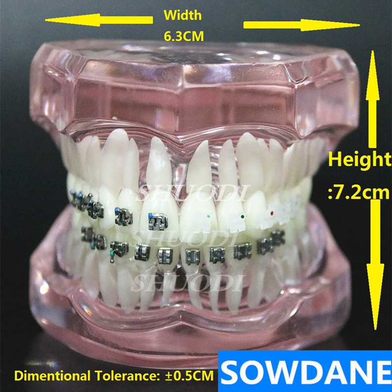 Dental Orthodontic Model Patients Communication 4 kinds Brackets with Ceramic Bracket Metal Self Ligating