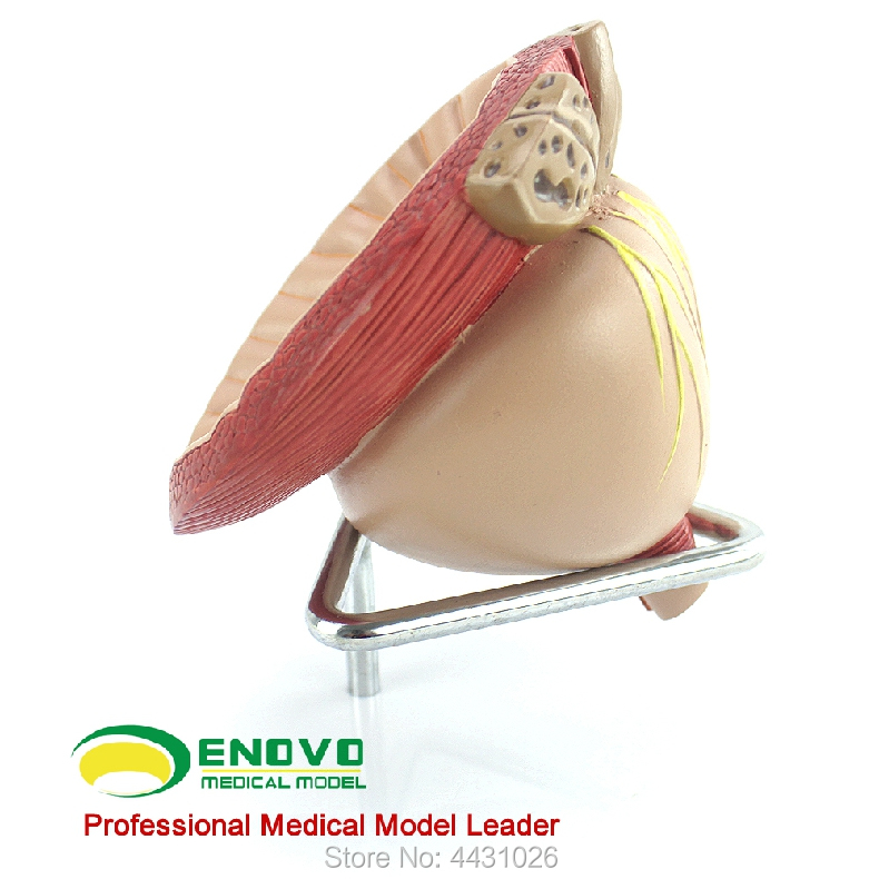 ENOVO The prostatic anatomy model of the prostate was divided into BPH цена