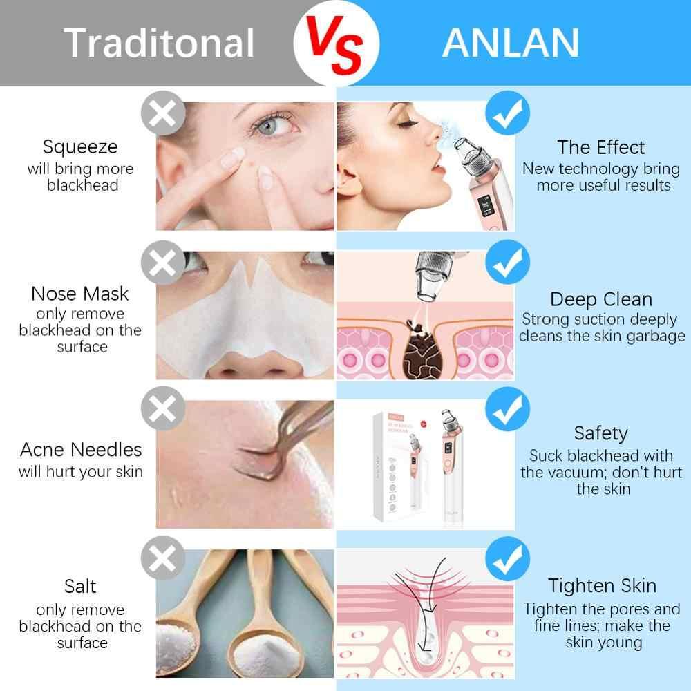 ANLAN חטט מסיר עור טיפול ואקום נקבובית אקנה פצעון הסרת פנים dermabrasion NoseFace עמוק ניקוי מכונת נקי כלי